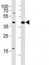 Western blot testing of CXCR4 antibody at 1:1000 dilution. Lane 1: Jurkat lysate; 2: rat heart lysate; Predicted band size : 40 kDa.