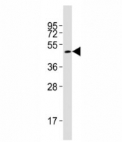 Western blot testing of Smad3 antibody at 1:2000 dilution + rat brain lysate; Observed molecular weight: 48~55 kDa.