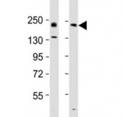 Western blot testing of Erbb2 antibody at 1:2000 dilution. Lane 1: mouse ovary lysate; 2: rat lung lysate; Predicted band size : 139 kDa.