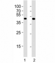 Western blot testing of Pou5f1 antibody at 1:4000 dilution. Lane 1: F9 lysate; 2: NCCIT lysate; Predicted molecular weight ~38/30kDa (isoform A/B).
