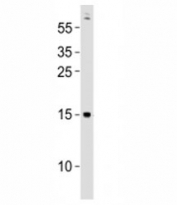 Western blot testing of Gabarapa antibody at 1:500 dilution + zebrafish lysate; Predicted molecular weight : 14 kDa.