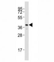 Western blot testing of Rho antibody at 1:2000 dilution + zebrafish muscle lysate; Predicted molecular weight: 40 kDa.