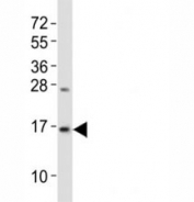 Western blot testing of LC3B antibody at 1:2000 dilution + mouse brain lysate; Predicted band size : 15 kDa.
