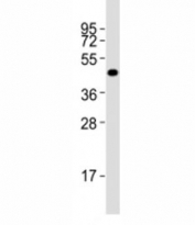 Western blot testing of Pou5f1 antibody at 1:2000 dilution + F9 lysate; Predicted molecular weight ~38/30kDa (isoform A/B).