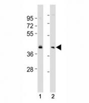 Western blot testing of BMI1 antibody at 1:2000 dilution. Lane 1: SW480 lysate; 2: HeLa lysate; Predicted molecular weight: 37-43 kDa.