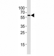Western blot testing of Atg5 antibody at 1:4000 dilution + NIH3T3 lysate; ATG5: ~32 kDA; ATG5/ATG12 heterodimer: ~56 kDa