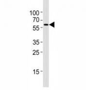 Western blot testing of Atg5 antibody at 1:4000 dilution + NIH3T3 lysate; ATG5: ~32 kDA; ATG5/ATG12 heterodimer: ~56 kDa