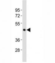 Western blot testing of Caspase-4 antibody at 1:2000 dilution + human Raji lysate; Expected molecular weight ~43 kDa (precursor), ~30 kDa (pro + large subunit), ~20 kDa (large subunit).