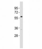 Western blot testing of VANGL2 antibody at 1:2000 dilution + DU145 lysate; Predicted molecular weight ~60 kDa.