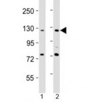 Western blot testing of AATK antibody at 1:2000 dilution. Lane 1: HeLa lysate; 2: NIH3T3 lysate; Predicted band size : 145 kDa.