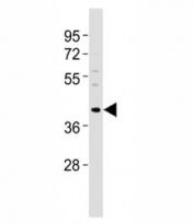 Western blot testing of Bmi1 antibody at 1:2000 dilution + H-4-II-E lysate; Predicted molecular weight: 37-43 kDa.