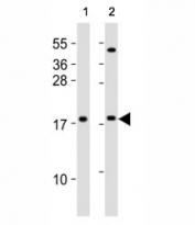 Western blot testing of HMGA2 antibody at 1:2000 dilution. Lane 1: human HepG2 lysate; 2: mouse NIH3T3 lysate. Predicted molecular weight ~12kDa but routinely observed at ~18kDa.