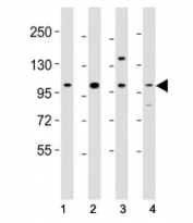Western blot testing of Fgfr4 antibody at 1:2000 dilution. Lane 1: mouse skeletal muscle lysate; 2: mouse spleen lysate; 3: rat lung lysate; 4: mouse lung lysate; Observed molecular weight: 88~125 kDa depending on phosphorylation and glycosylation level.