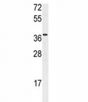 Western blot analysis of Npm1 antibody and rat heart tissue lysate. Ab used at 1:2000. Expected/observed molecular weight: ~38kDa.