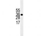 HuR antibody western blot analysis in Jurkat lysate