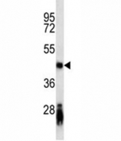 CD79a antibody western blot analysis in mouse spleen tissue lysate. Predicted/Observed molecular weight: 25~47 kDa depending on glycosylation level