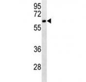 CD4 antibody western blot analysis in Jurkat lysate