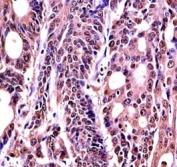 Anti-HMGB1 antibody immunohistochemistry analysis in formalin fixed and paraffin embedded human colon carcinoma.