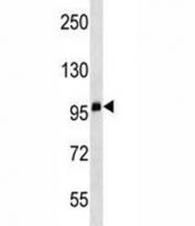 CD68 antibody western blot analysis in WiDr lysate