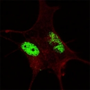 Fluorescent confocal image of an SY5Y cell stained with SOX2 antibody at 1:200. SOX2 immunoreactivity is localized exclusively to the nucleus.