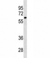 CYP1A2 antibody western blot analysis in SK-BR-3 lysate. Predicted molecular weight ~58 kDa.