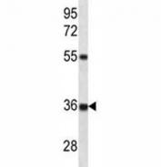 CTGF antibody western blot analysis in HeLa lysate. Predicted molecular weight ~38kDa.