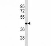 ADA antibody western blot analysis in Jurkat lysate. Expected/observed molecular weight ~41 kDa.