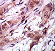IHC analysis of FFPE human breast carcinoma tissue stained with the AURKC antibody