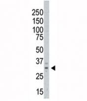 Western blot testing of AURKC antibody and A375 cell lysate. Predicted molecular weight ~ 33 kDa.