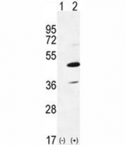 Western blot analysis of IRAK4 antibody and 293 cell lysate either nontransfected (Lane 1) or transiently transfected (2) with the IRAK4 gene. Predicted molecular weight 52/37 kDa (isoforms 1/2).
