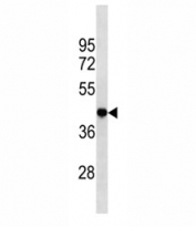 TBP antibody western blot analysis in HeLa lysate. Observed molecular weight: 35-43 kDa.