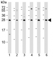 Western blot testing of 1) mouse EL4, human 2) fetal thymus, 3) spleen, 4) HUT78, 5) Jurkat and 6) Molt-4 lysate with TIGIT antibody. Predicted molecular weight ~26 kDa.