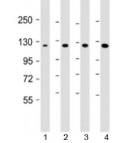 Western blot testing of 1) human DU-145, 2) human HepG2, 3) mouse brain and 4) HeLa cell lysate with AIP1 antibody at 1:1000. Predicted molecular weight: 132 kDa.