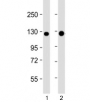 Western blot testing of human 1) A431 and 2) T47D cell lysate with E-Cadherin antibody at 1:4000. Expected molecular weight: ~135 kDa (precursor), 80-120 kDa (mature, depending on gylcosylation level).