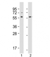 Western blot testing of human 1) Jurkat and 2) A431 cell lysate with SRC antibody at 1:1000. Predicted molecular weight: 60 kDa.