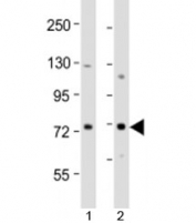 Western blot testing of human 1) MCF-7 and 2) T47D cell lysate with ERVK-9 antibody at 1:2000. Predicted molecular weight: 79 kDa.