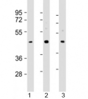 Western blot testing of human 1) HepG2, 2) MCF-7 and 3) PC-3 cell lysate with SAPCD2 antibody at 1:2000. Predicted molecular weight: 43 kDa.