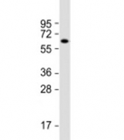 Western blot testing of mouse brain lysate with ZNF238 antibody at 1:2000. Predicted molecular weight: 58 kDa.