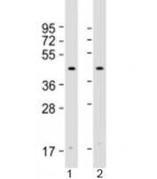 Western blot testing of human 1) HeLa and 2) Jurkat cell lysate with Atrogin 1 antibody at 1:2000. Predicted molecular weight: 42 kDa.