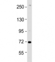 Western blot testing of HeLa cell lysate with ZDHHC17 antibody at 1:1000. Predicted molecular weight: 73 kDa.