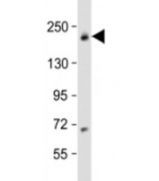 Western blot testing of human MCF-7 cell lysate with USP32 antibody at 1:1000. Predicted molecular weight: 182 kDa.