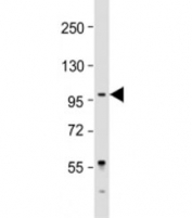 Western blot testing of Jurkat cell lysate with LARGE antibody at 1:2000. Predicted molecular weight: 88 kDa.
