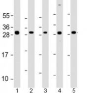 Western blot testing of human 1) SK-BR-3, 2) HeLa, 3) HCT116, 4) MCF-7 and 5) HL-60 cell lysate with NAA10 antibody at 1:2000. Predicted molecular weight: 26 kDa.
