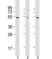 Western blot testing of human 1) HT-1080, 2) SH-SY5Y and 3) Y79 cell lysate with ZNF513 antibody at 1:2000. Predicted molecular weight: 58 kDa.