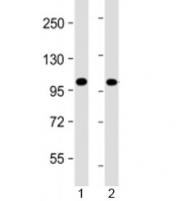 Western blot testing of human 1) Jurkat and 2) K562 cell lysate with PRDM16 antibody at 1:4000. Predicted molecular weight: 140 kDa.