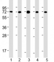Western blot testing of human 1) MCF-7, 2) PC-3, 3) COS-7, 4) DU-145 and 5) SK-BR-3 cell lysate with USP2 antibody at 1:2000. Predicted molecular weight: 68 kDa. Isoforms at ~41 and ~45 kDa may also be observed.