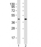 Western blot testing of human 1) HepG2 (liver carcinoma line) and 2) liver lysate with AGXT antibody at 1:2000. Predicted molecular weight: 43 kDa.
