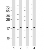Western blot testing of human 1) HepG2, 2) HeLa, 3) Caki-1 and 4) HT-29 cell lysate with ARF4 antibody at 1:2000. Predicted molecular weight: 21 kDa.