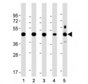 Western blot testing of NSFL1C antibody at 1:2000 + human lysate 1: 293, 2: A431, 3: NCI-H1299, 4: U-251 MG, and 5: mouse brain lysate. Predicted molecular weight ~41 kDa.