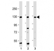 Western blot testing of INTS3 antibody at 1:2000 + Lane 1: human 293, 2: HeLa, and 3: Jurkat cell lysate. Predicted molecular weight ~118 kDa.